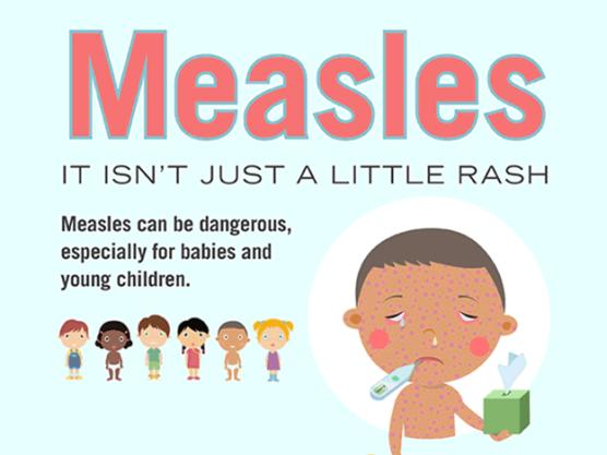 measles_fldoh_8-29